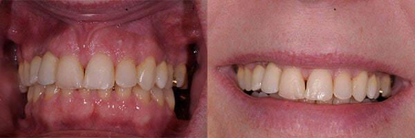 teeth implants after