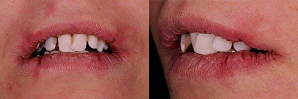 teeth implants before